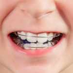 子どもにやさしい歯並び矯正「床矯正装置」